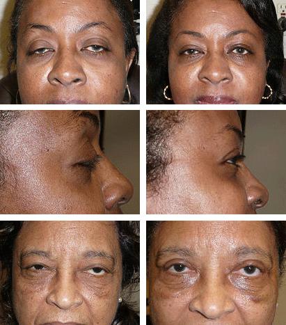 Eyelid Surgery Broward County FL | Hollywood Eye Institute